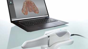 SCANNER INTRAORALE 3D